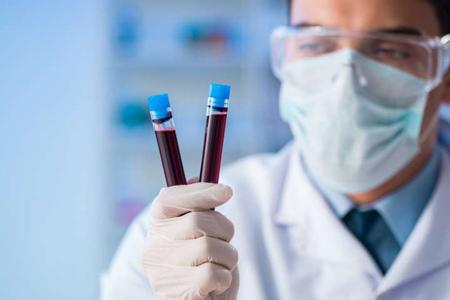Químicas-sanguíneas